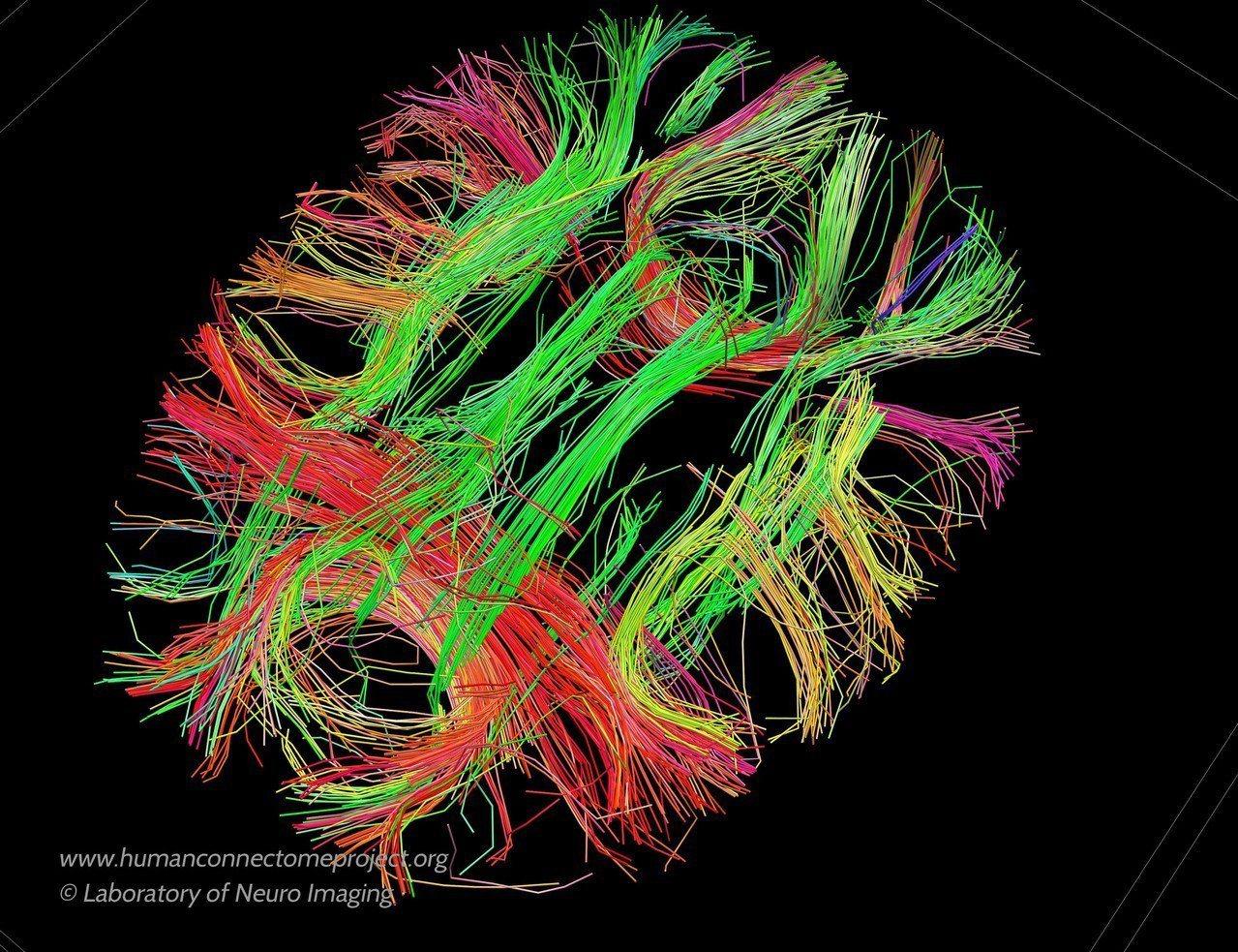 美國神經影像實驗室提供的圖片顯示,人腦中訊息傳遞的路徑。(美聯社)