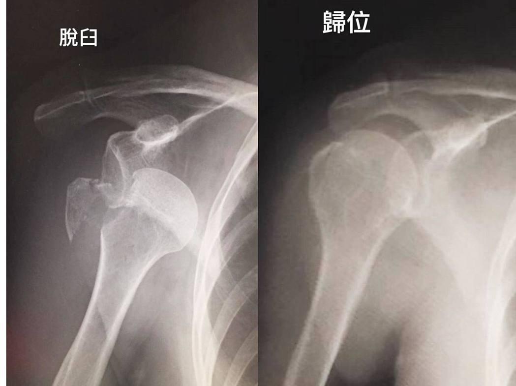 陳美鳳到日本旅遊發生意外,導致手臂脫臼。 圖/擷自陳美鳳臉書