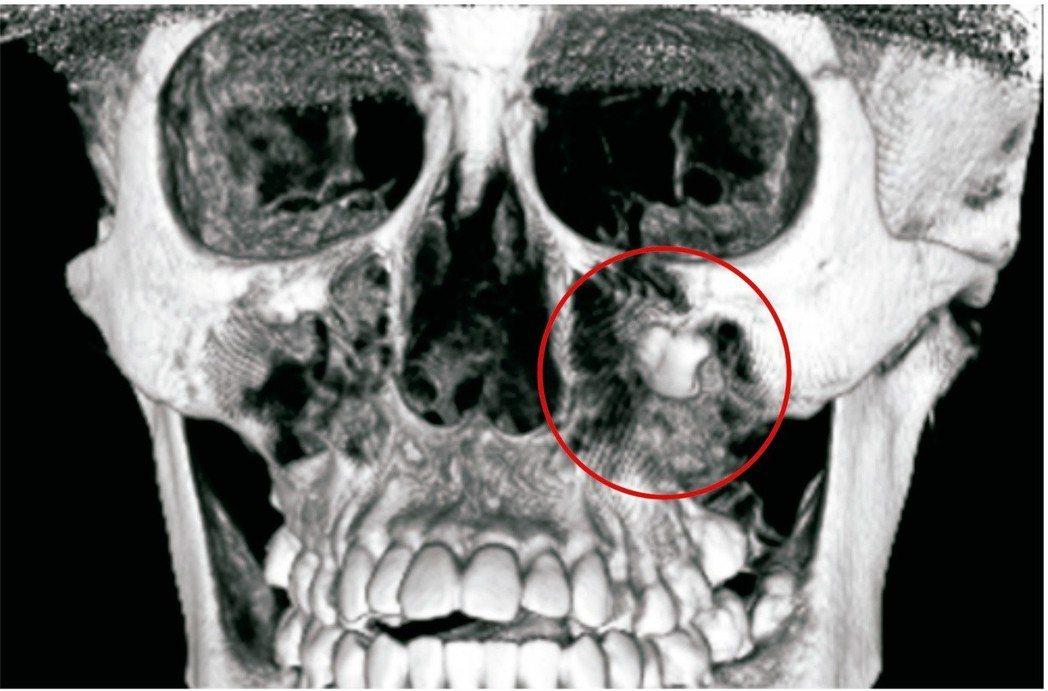 嚕嚕的智齒非常深,長在左眼眶下緣,巨大的囊腫佔據了整個上顎鼻竇。照片/彰基提供