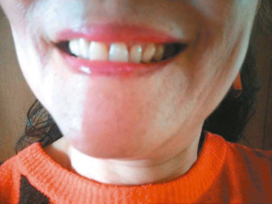 如今時間久遠,牙肉有些萎縮,齒縫間難免有一些隙縫,不易清理碎屑,牙醫師建議我用兒...