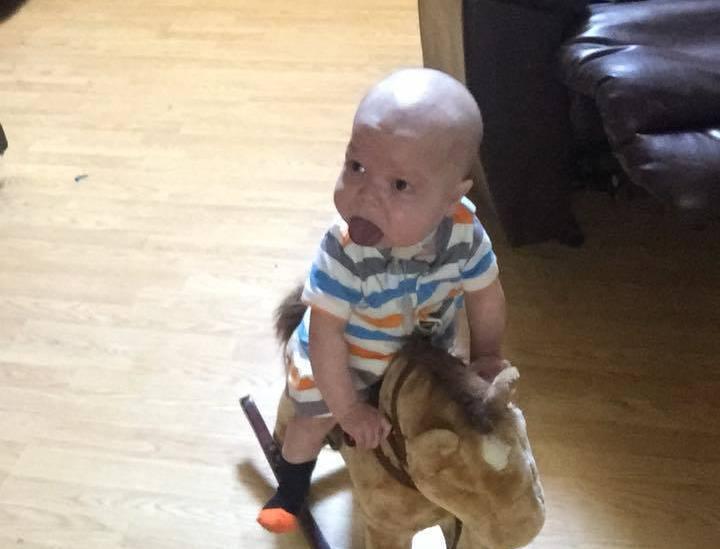 法拉的寶寶罹患了罕見的「巨舌症」,舌頭是一般人的兩倍大、口腔根本裝不下,因此才總...