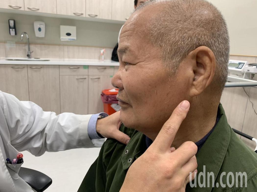 耳垂出現如皺紋般的摺痕,代表耳垂中富含彈性的「膠原蛋白纖維」缺血,推測病人可能潛...