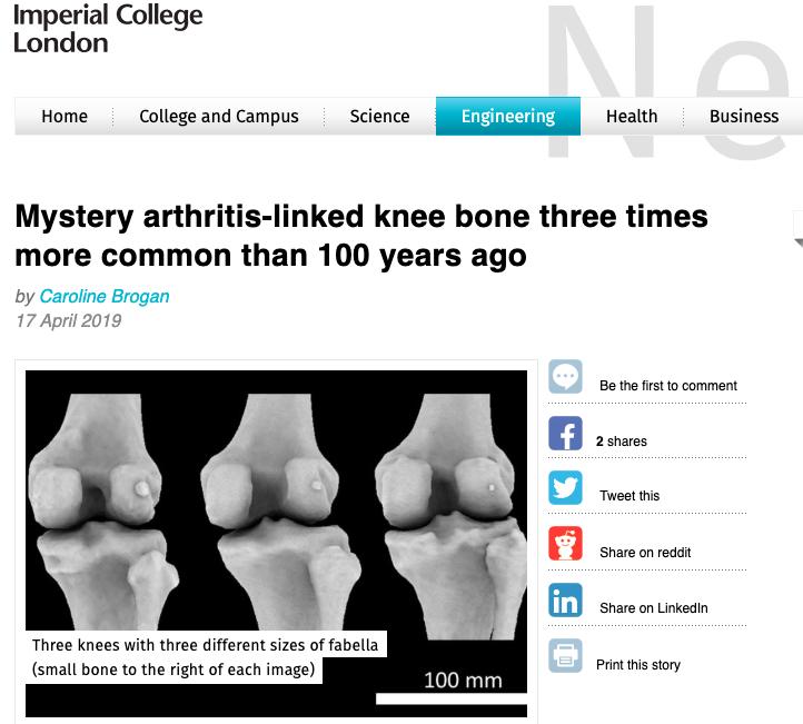 《解剖學雜誌》刊出新發現:人類演化過程中一度漸漸消失的膝部豆狀骨意外重現。圖中可...