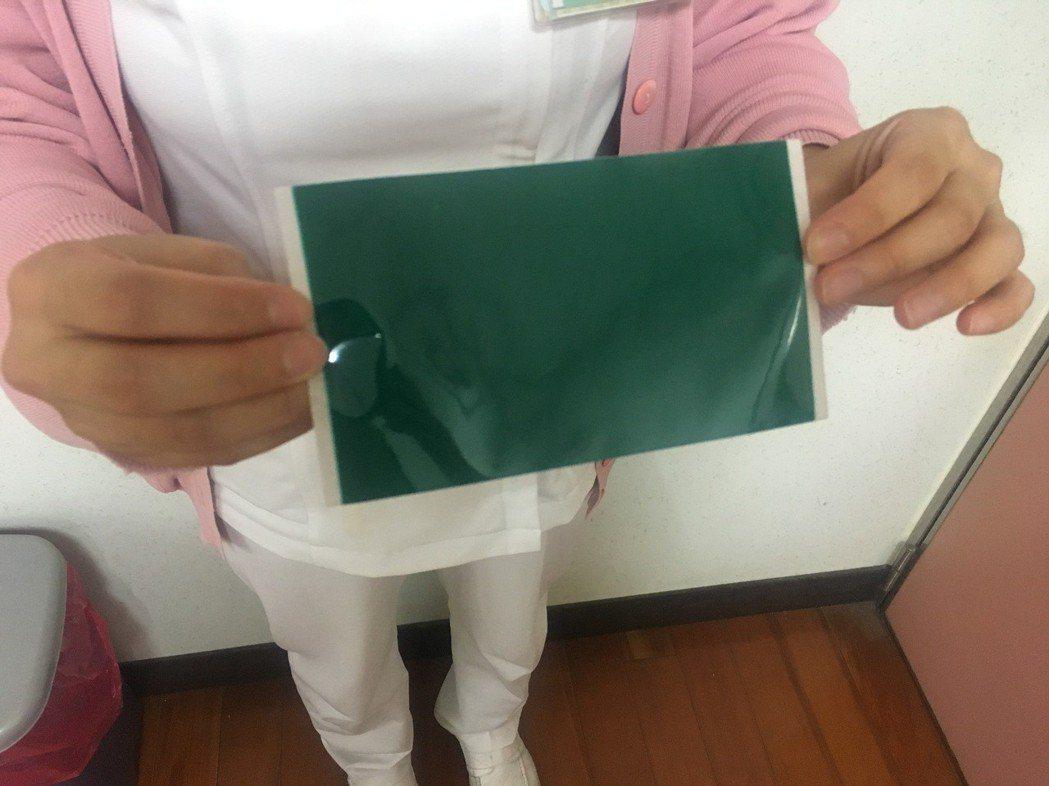 酸痛藥布使用不當會導致腎臟負擔過大等副作用。圖/南投醫院提供