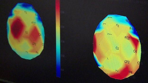 大腦控制行動的部分(左圖紅色部位)運作不良,但用新療法治療三個月後恢復正常功能(...