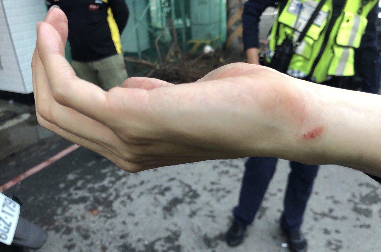 黃姓酒客動怒潮向警員李建安痛毆,造成李員臉部、鼻子出血、右手腕擦傷與頸部扭傷,李...