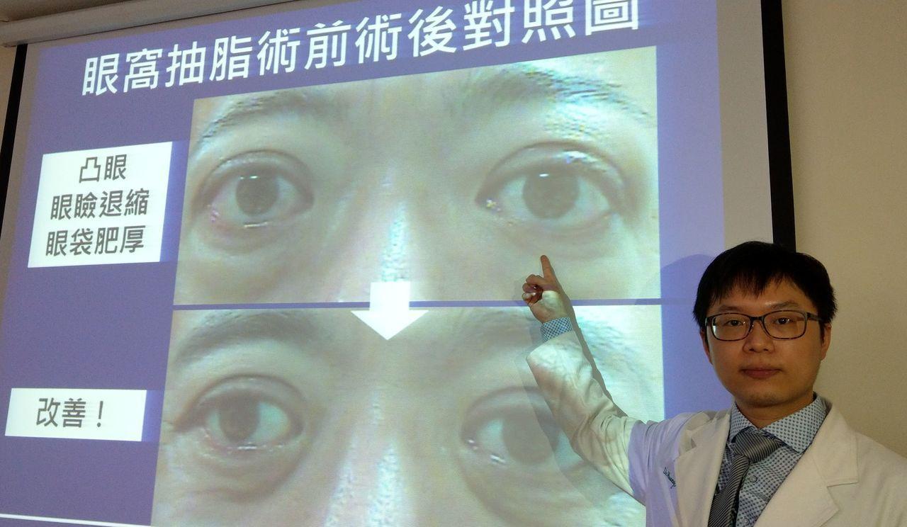 醫師黃晉德說明,46歲鍾姓貨車司機因甲狀腺凸眼,困擾不已(上圖),經接受眼窩抽脂...