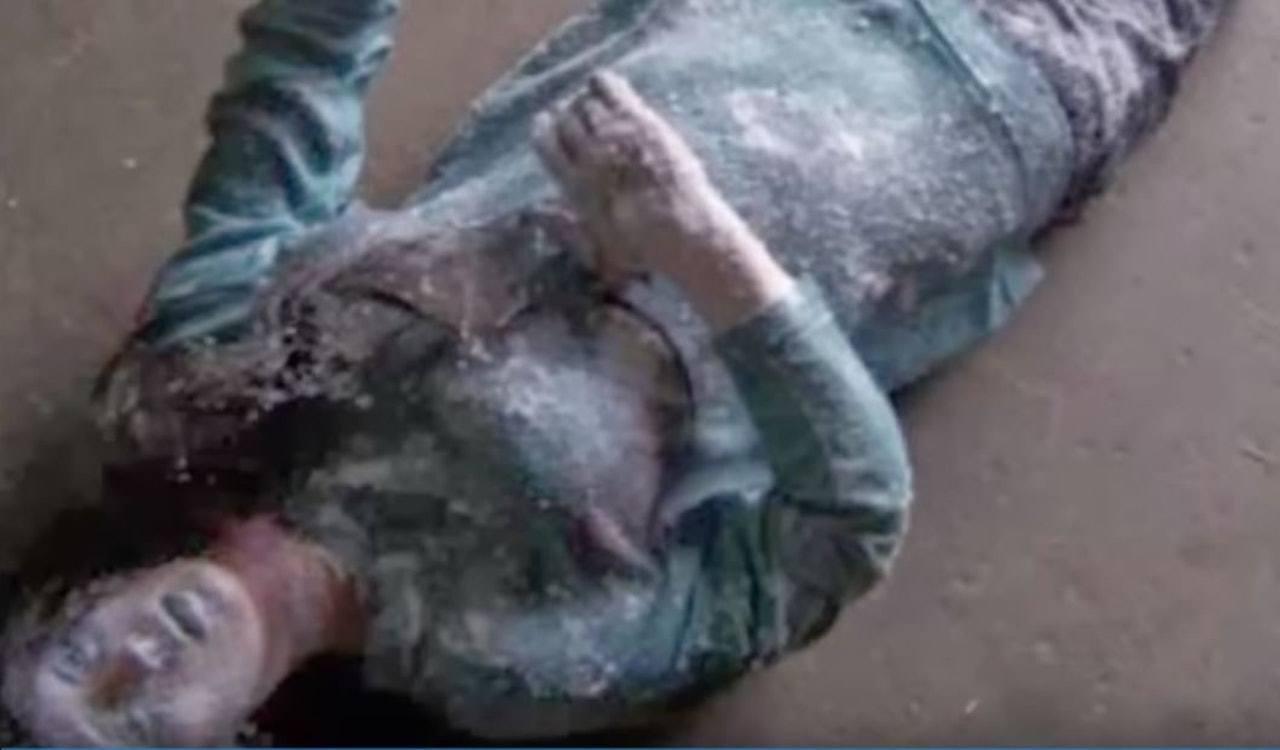 希利亞德被發現時凍成「雪人」,瞳孔擴張,就連眼球都凍結了,皮膚僵硬得針也戳不進去...