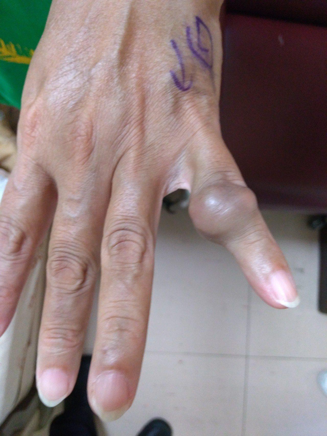 手部軟組織腫瘤中第二常見的腱鞘巨細胞瘤,好發於30至50歲族群,常見於掌心側的指...