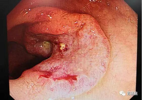 距肛門17-20cm處φ3cm之潰瘍性病變。