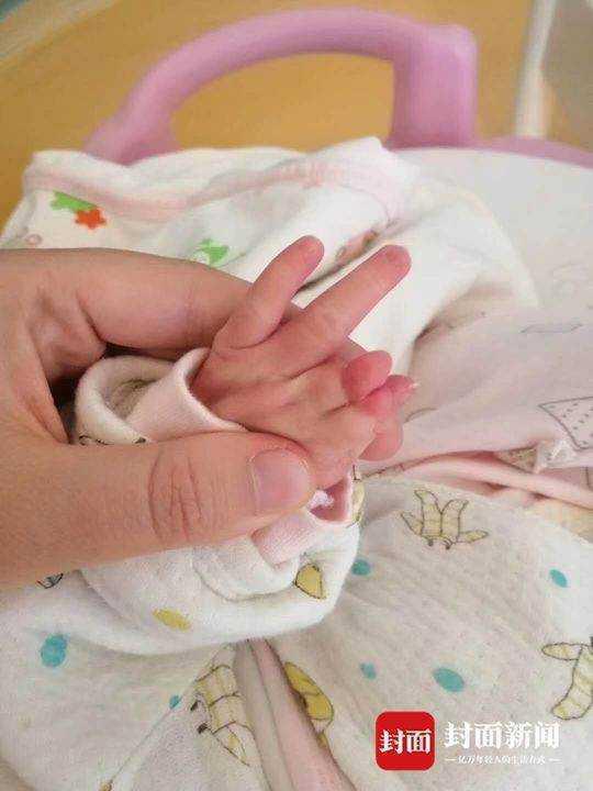 女嬰米米在四川省德陽腫瘤醫院出生,身體卻有殘疾,沒有右臂、左手手指粘連在一起,左...