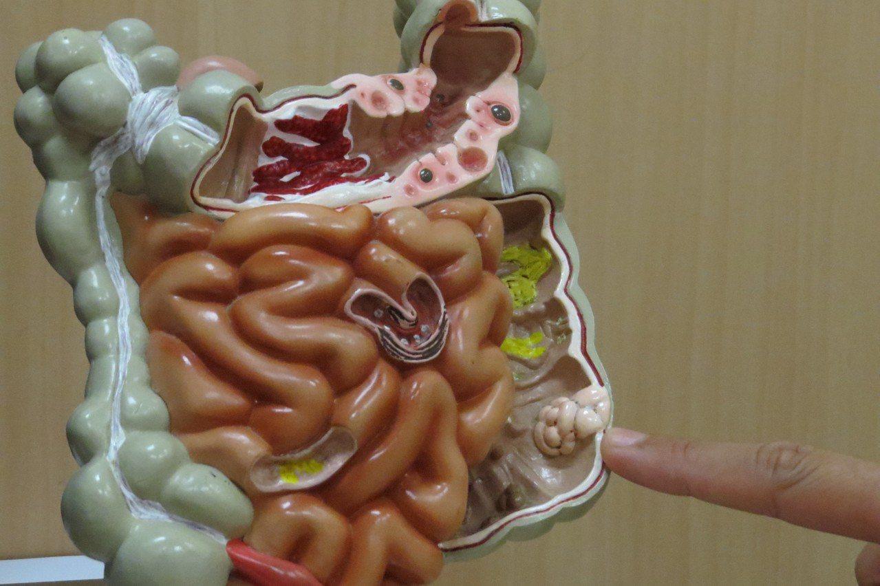 「家族性大腸瘜肉症」在大腸癌病患中比率佔百分之一,並不多見。 圖/台中慈濟醫院提...
