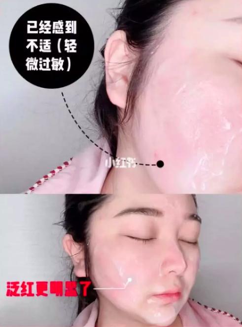 有網友灌膚完,皮膚過敏。圖/摘自小紅書