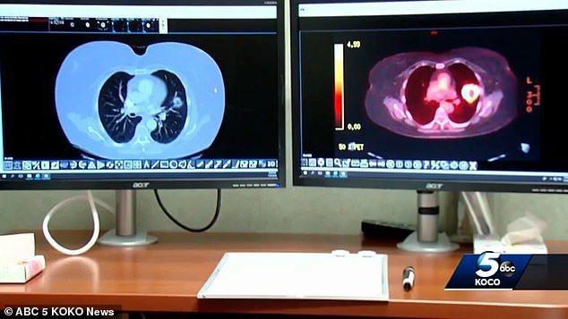 提本斯兩次PET掃描結果,可以看出2017年1月(左)與2018年5月(右)的兩...