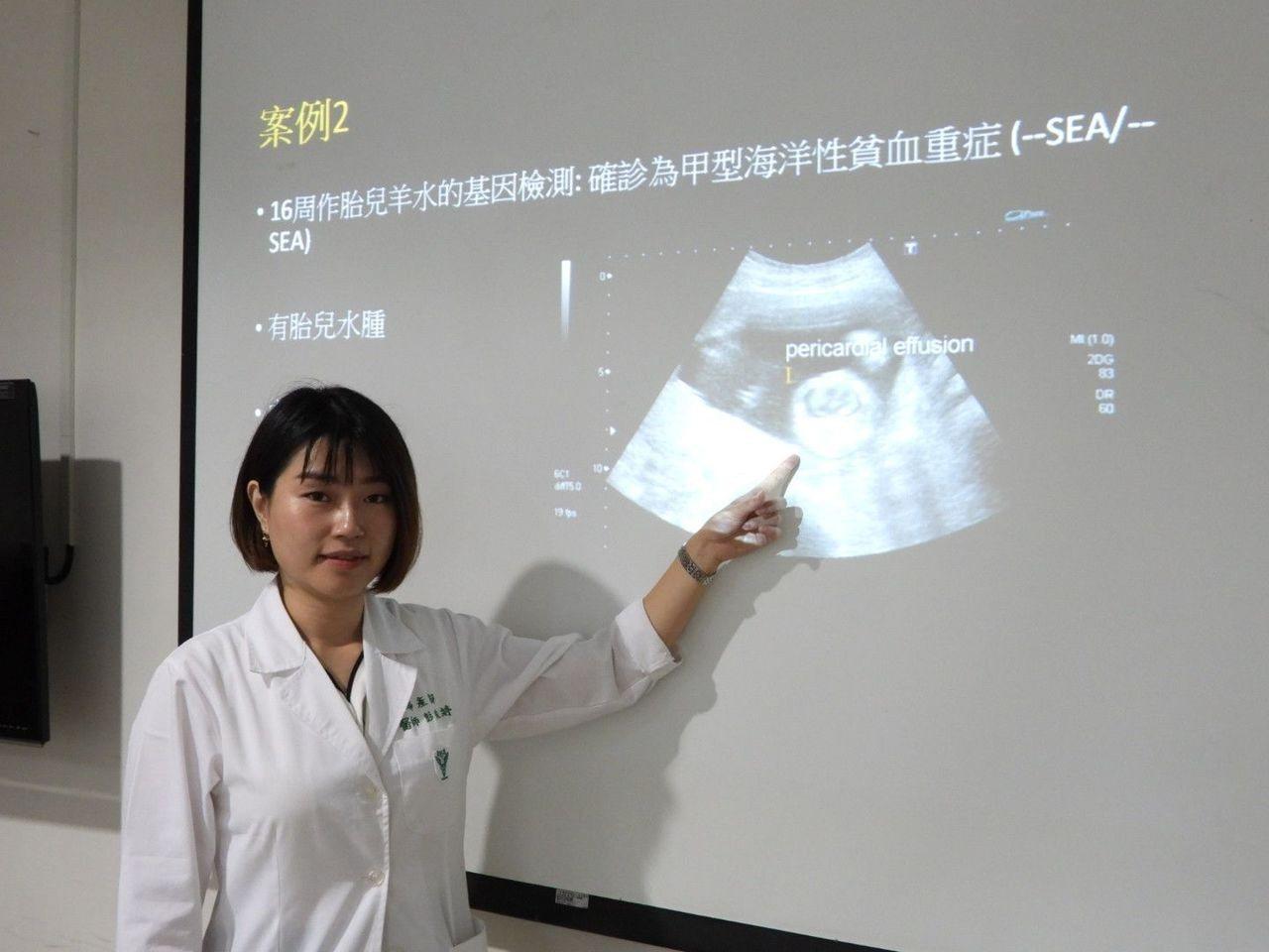 海洋性貧血帶因父母生下重症子女,超音波確認胎兒嚴重病變。記者周宗禎/攝影