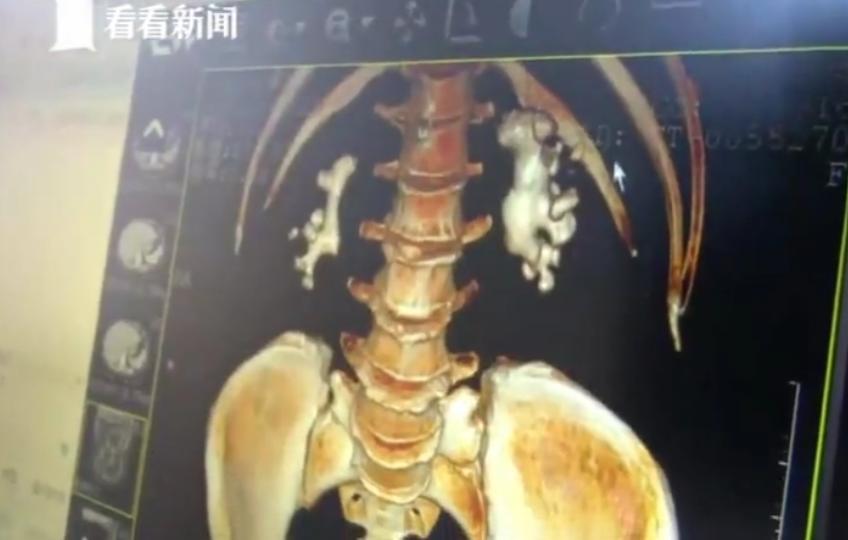 婦人腎裡面長出兩塊形似「生薑」的結石。圖取自看看新聞