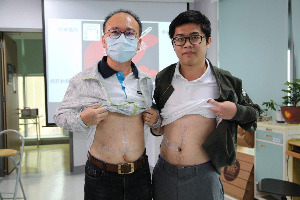 肝癌患者林世東(左)喜獲兒子林雲笙換肝給他,得以獲得新生。記者黃寅/攝影