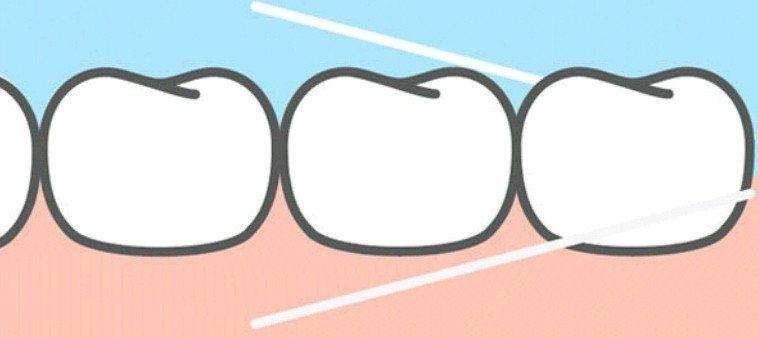 整排牙齒最後方的大臼齒,很多人在用牙線清牙時常忽略。圖/取自網路