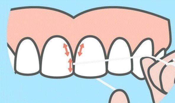 用牙線清潔牙齒時,每個牙縫要貼著牙齒,左、右各清一次。圖/取自網路