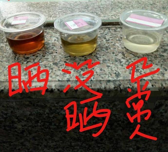浙江大學醫學院對患者尿液經曝曬轉成罕見咖啡色找出鐵證,發現大陸首例吸血鬼症。取自...