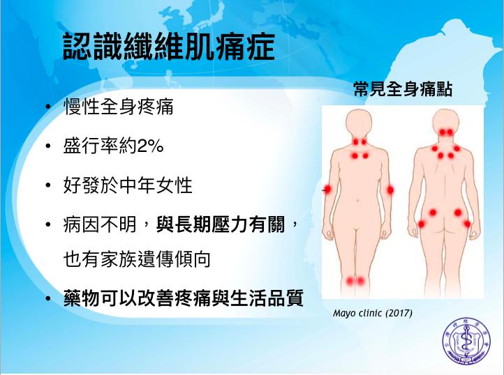 纖維肌痛症發生在各個族群,台灣盛行率約為2%,換算人數約為60多萬人。圖/台灣神...
