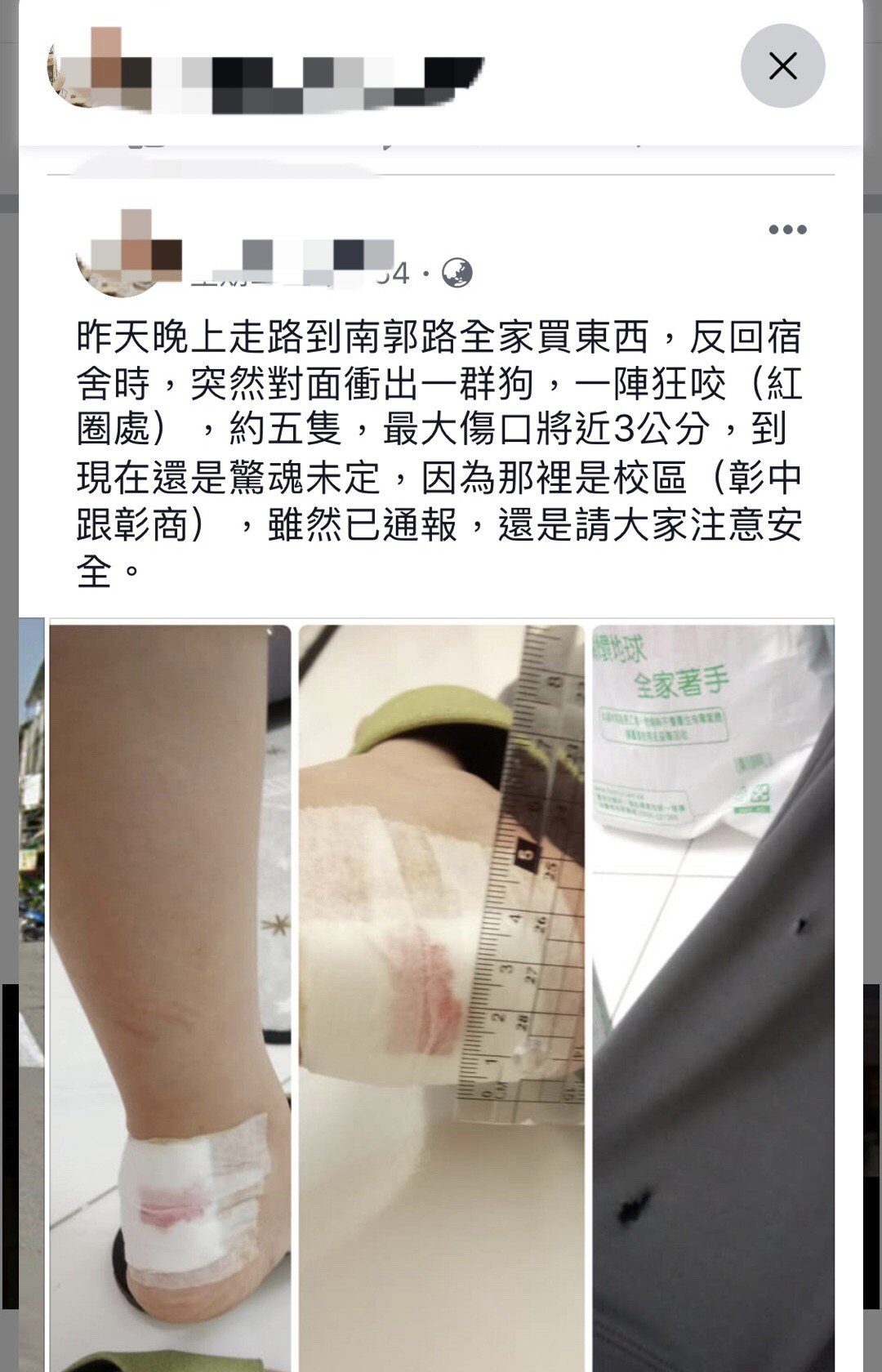 彰化市民在臉書彰化人大小事po出前幾天她被流浪狗咬傷事件,引起熱議。圖/翻攝