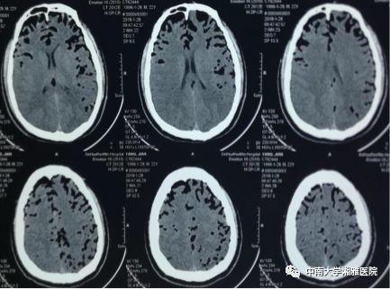 患者顱腦CT結果