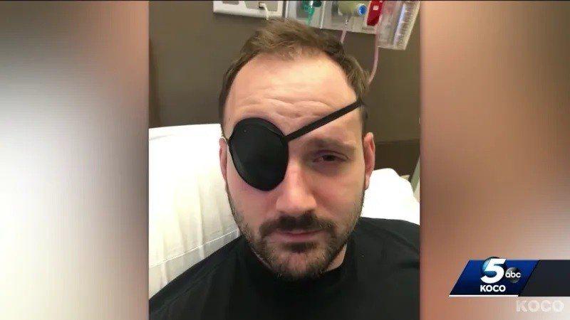 美國28歲男子哈德因為轉脖子的動作,竟造成他中風,右眼視神經受損必須戴眼罩。(取...