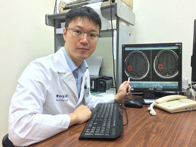 澄清醫院中港院區放射腫瘤科醫師梁家郡指出,為避免10到15次全腦放射的可能後遺症...