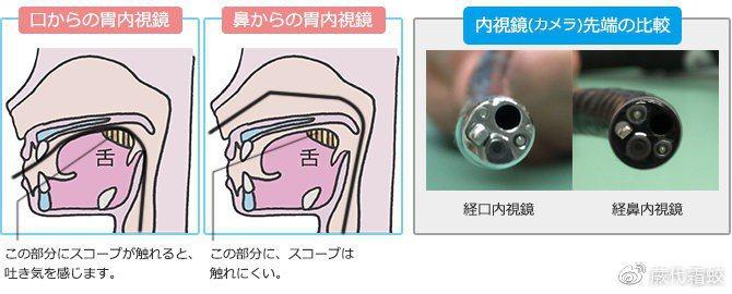 經鼻胃鏡與傳統經口胃鏡經鼻胃鏡與傳統經口胃鏡。