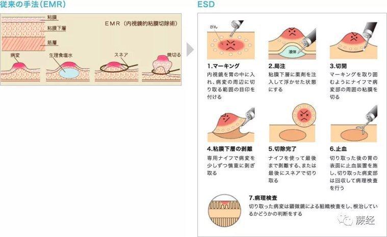 胃鏡下胃癌手術EMR和ESD。