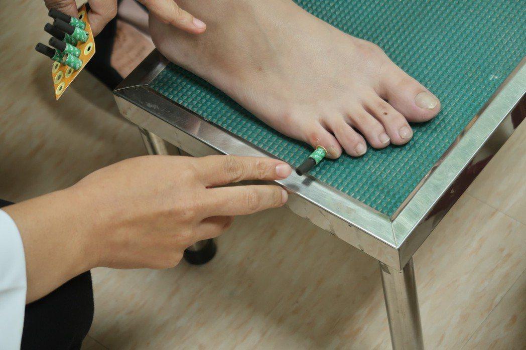 艾灸轉胎是將艾灸置於雙腳小趾的「至陰穴」,一周做3至5次,每次煙燻約15分鐘。記...