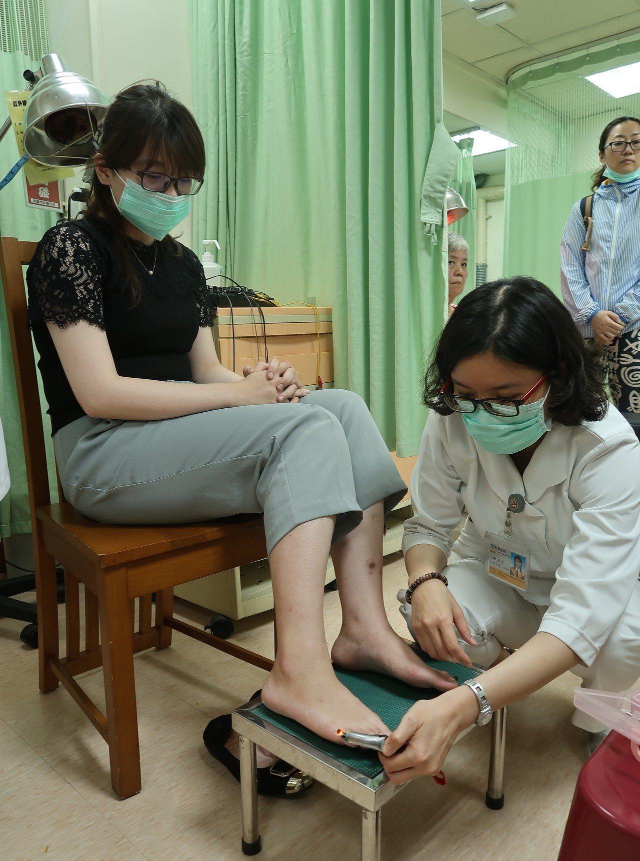 「艾灸轉胎」是中醫傳統療法,將艾灸置於雙腳小趾的「至陰穴」燻。記者徐如宜/攝影