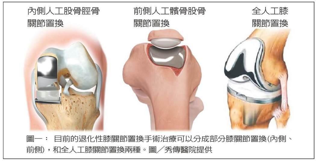 圖一: 目前的退化性膝關節置換手術治療可以分成部分膝關節置換(內側、前側),和全...