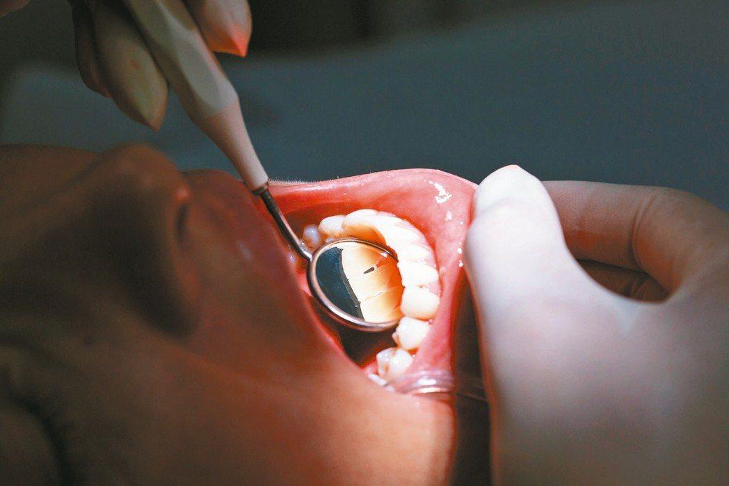 根據健保署統計,106年接受過牙周病治療的患者,多達279萬9000多人,其中高...