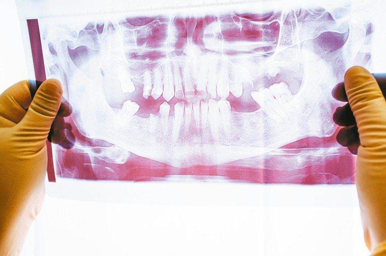 牙周病是泛指在牙齒周圍支持組織,包括牙齦(俗稱牙肉)、齒槽骨、牙周韌帶間發生細菌...