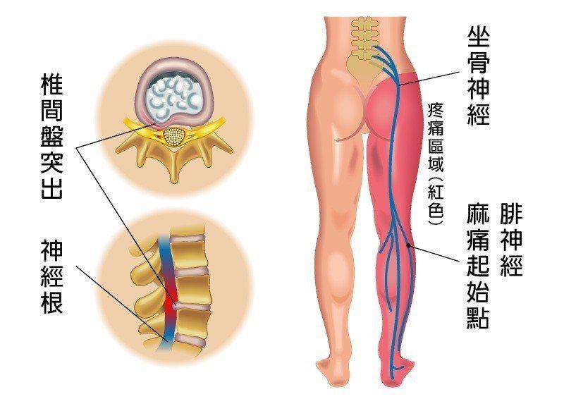 椎間盤突出壓迫神經根,是引發坐骨神經痛常見原因。 圖/菁英診所 提供