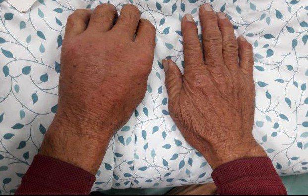 患者的手在海岸被刺傷,腫脹就醫。圖/光田醫院提供