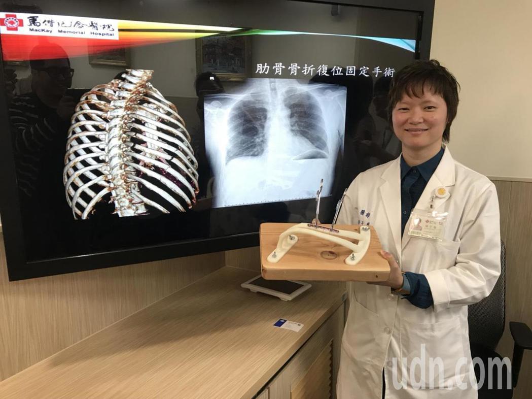 馬偕胸腔外科主治醫師楊于慧表示,發生肋骨斷裂、甚至錯位情形時,若要自行修復通常需...