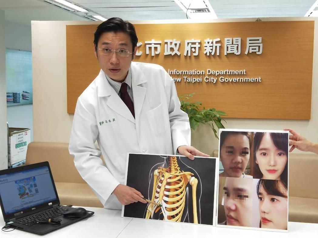 新北聯合醫院耳鼻喉科主任林鴻穎解釋,使用全自體肋軟骨重建鼻子的原因。圖/新北聯合...