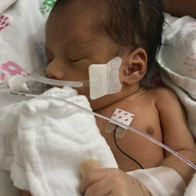 19歲孕婦被一名女網友剖肚奪嬰,嬰兒目前情況危殆,醫生估計生存機會渺茫。圖擷自/...