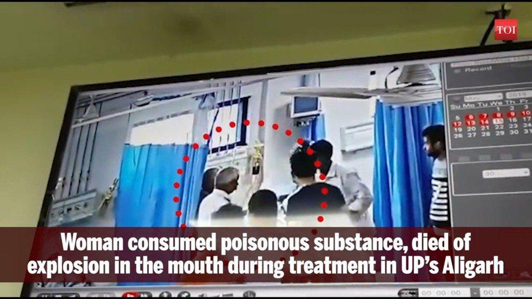 女病患的頭部發生爆炸,不只有火焰閃光,隨後還飄出陣陣白煙,讓在場的所有人都看傻了...
