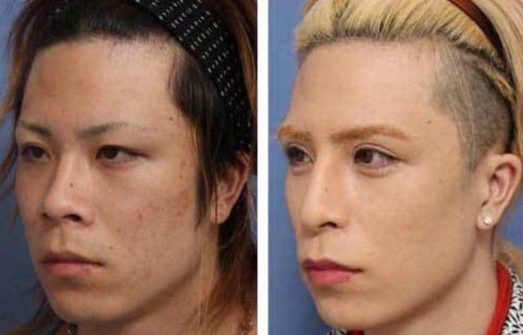 整形照片公开!日本第一牛郎以前长这样 - udn 嘘!星闻 -6318726