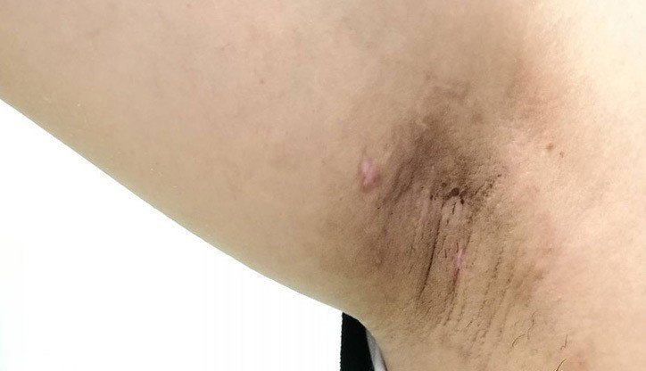 用旋轉刀刮除腋下汗腺,傷口小、術後併發症少,恢復期也短。圖/花蓮醫院提供