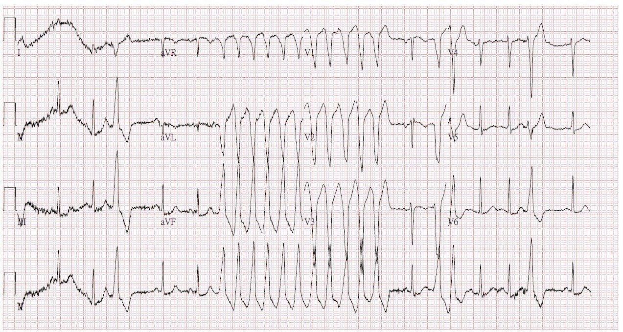 心室頻脈發作時的心電圖,出現波形起伏大且錯亂。圖/台北慈濟醫院提供