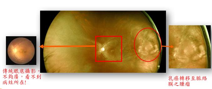 一名已知自己罹患乳癌末期48歲婦人,突然發現飛蚊症狀、視力模糊現象,檢查意外發現...