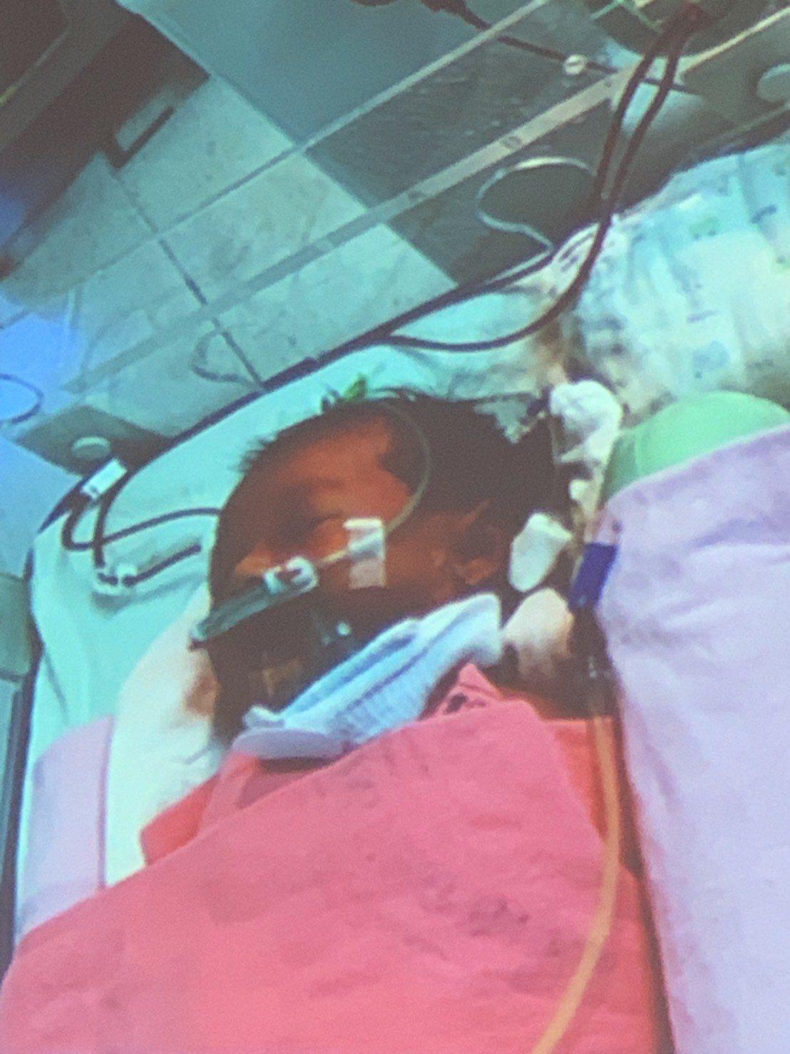 北榮完成全台年紀最小的肝臟移植手術。記者陳雨鑫/翻攝