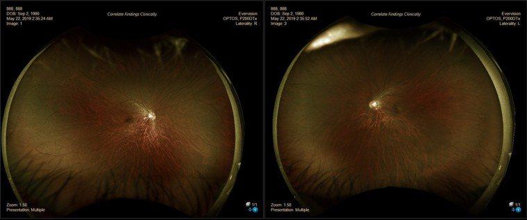 免散瞳超廣角眼底攝影檢查儀,能看到廣達97%的視網膜,不易遺漏躲在視網膜周邊的病...