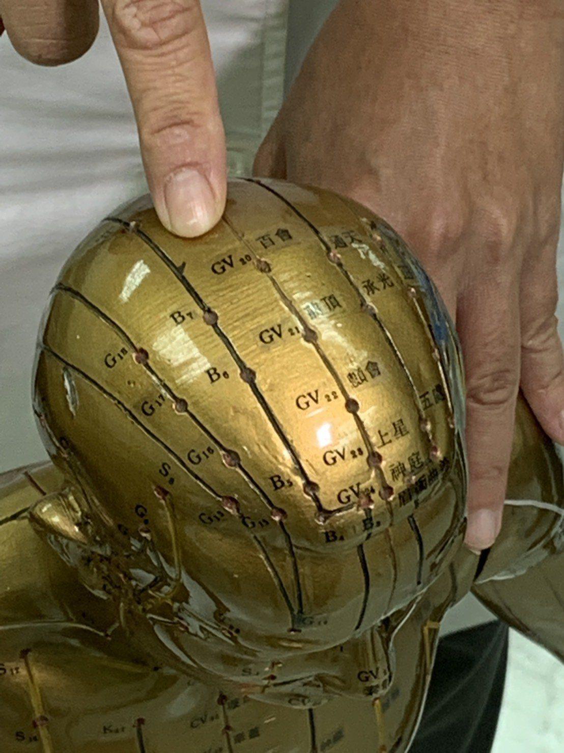 中醫陳香霓醫師建議按摩頭頂百會穴有助安眠。 圖/院方提供