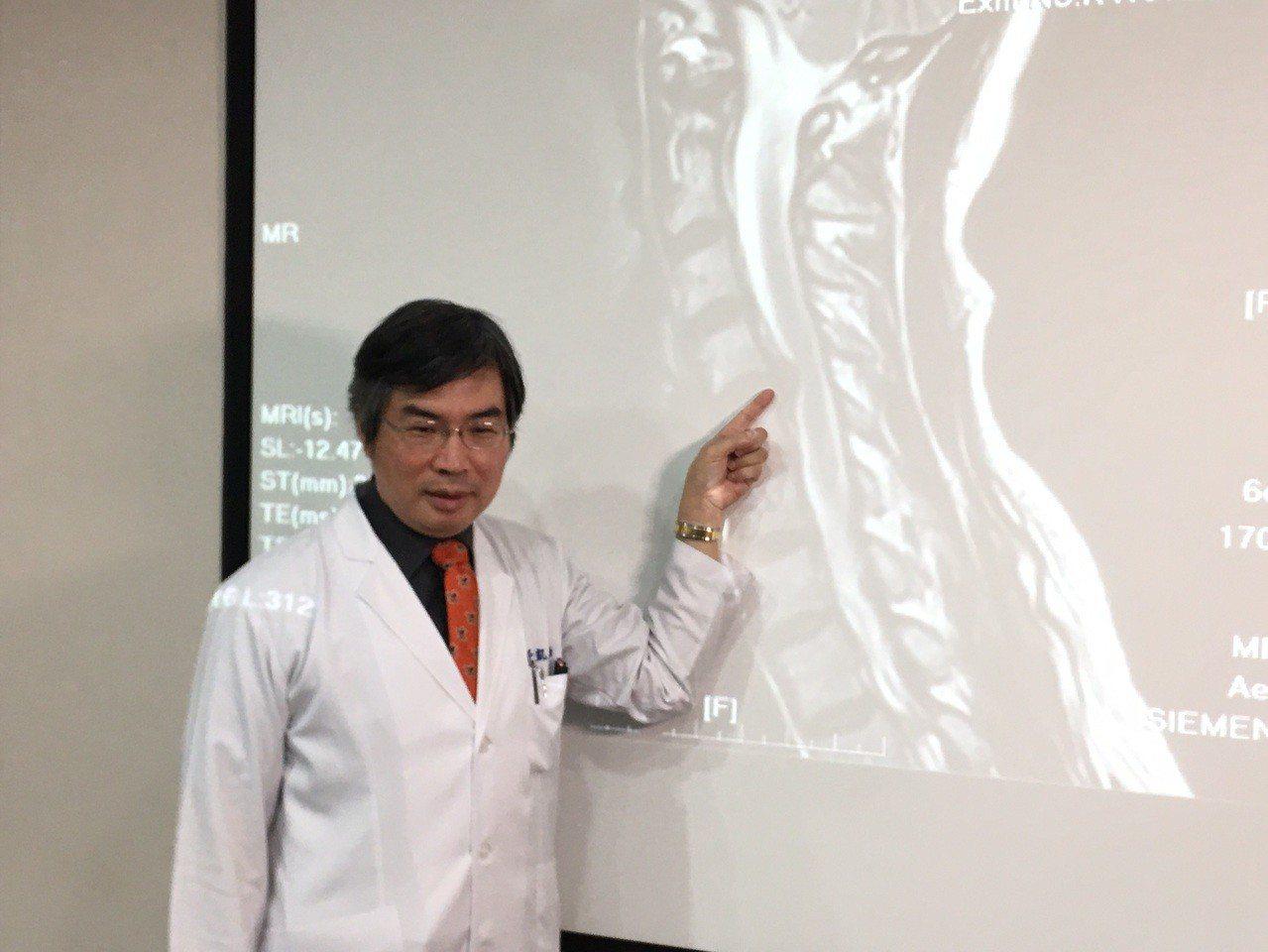 台中榮總功能性神經外科主任鄒錫凱指出,超過40歲以上的人約有30%以上會有頸椎椎...